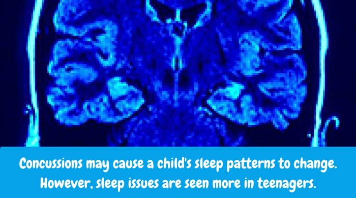 Sleep patterns may change. Some people sleep less and others sleep more following a concussion. Difficulty falling asleep and/or staying asleep may occur. However, problems with sleep are observed more in teenagers than smaller children.