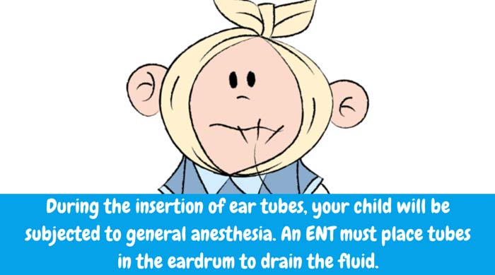 During the insertion of ear tubes, your child will be subjected to general anesthesia. An ENT must place tubes in the eardrum to drain the fluid.
