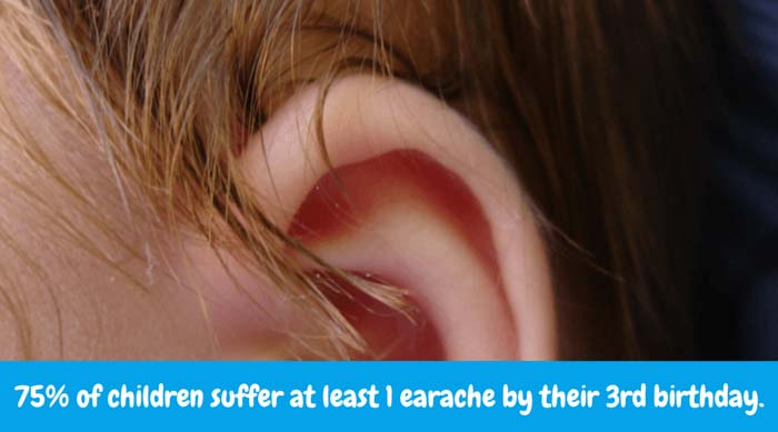 75% of children suffer at least 1 earache by their 3rd birthday.