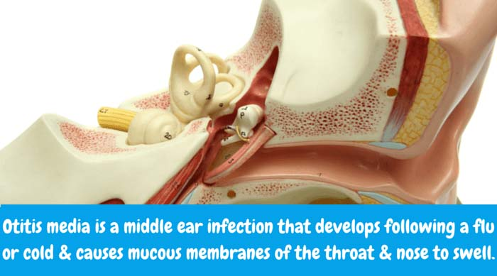 What is Otitis Media? Specifically, otitis media is a middle ear infection that usually develops following the flu or a common cold and causes mucous membranes of the throat and nose to swell. Normally, the Eustachian tube controls middle ear pressure. It's possible for otitis media to disturb functioning of the Eustachian tube.